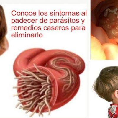 Síntomas de tener parásitos y remedios caseros para eliminarlos