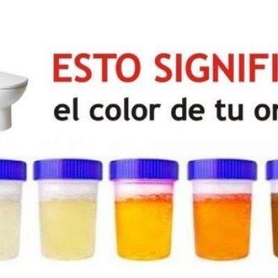 El color de la orina dice todo sobre tu salud ¡esto es lo que significa su color y que podría andar mal en tu cuerpo