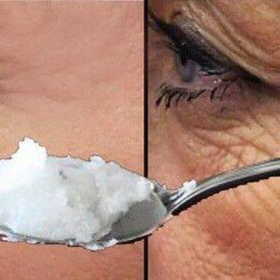 Esto quita 20 años de arrugas- úsalo por 2 días no mas porque rejuvenece demasiado