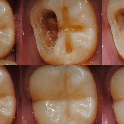 Una gota única blanquea los dientes