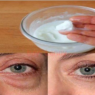 Bicarbonato de sodio para las arrugas, manchas y ojeras del rostro