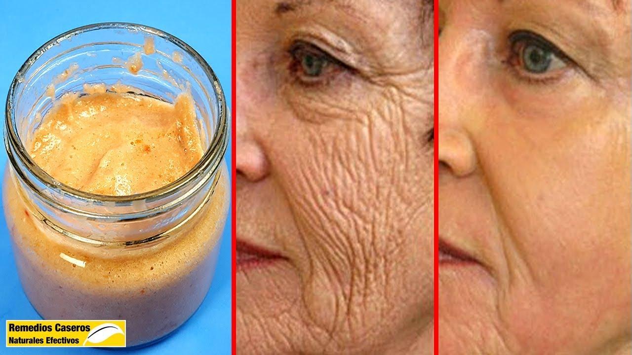 Aplicar Esta Máscara – Eliminar Las Arrugas En La Cara Y Te Hace Parecer Más Joven Que Tu Edad