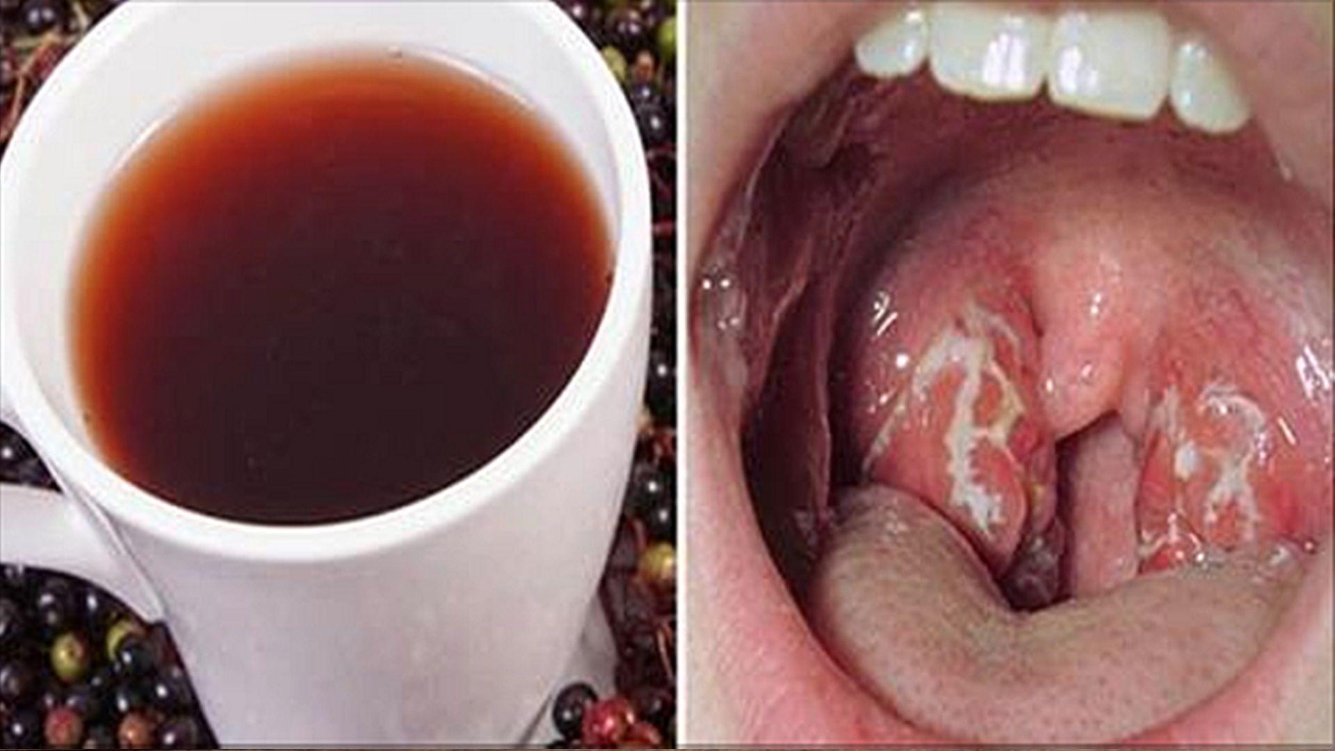 Remedios caseros para el dolor de garganta y tos