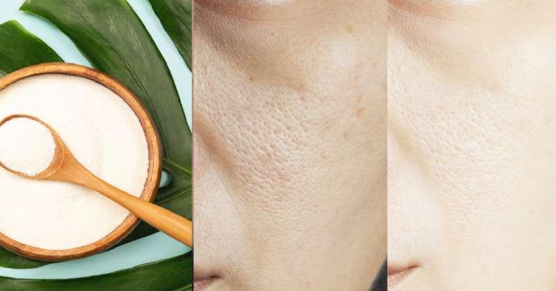 Cómo hacer colágeno natural para la piel con solo 2 ingredientes