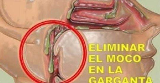 MOCO Y LA FLEMA DE TU GARGANTA
