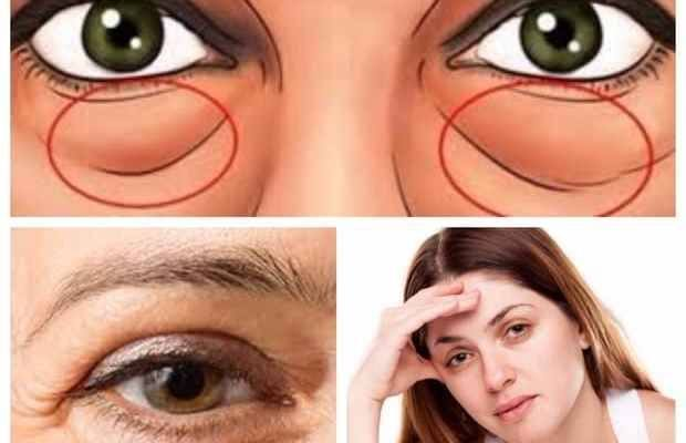 Cómo acabar con las bolsas en los ojos Las bolsas en los ojos son un claro signo de cansancio, de estrés y fatiga