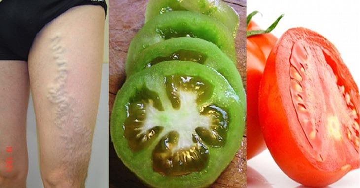 Cómo usar Tomates para Eliminar las Venas Varicosas