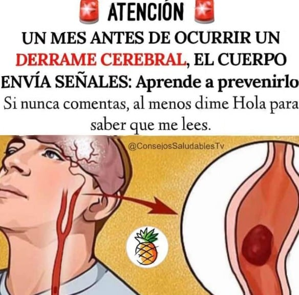 Señales Derrame cerebral