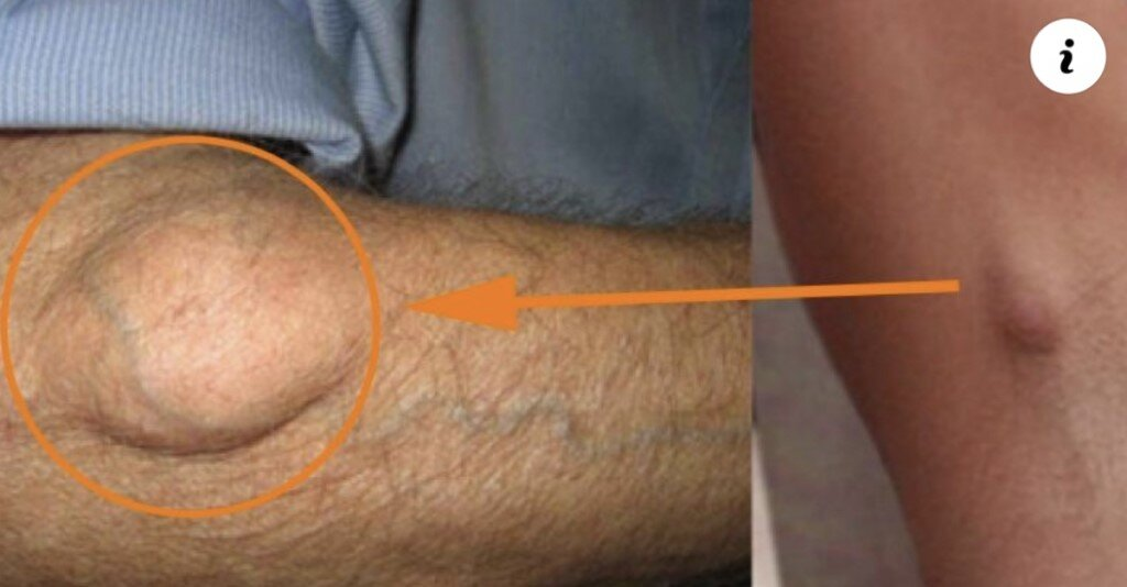 Elimina las bolitas de grasa (lipomas)