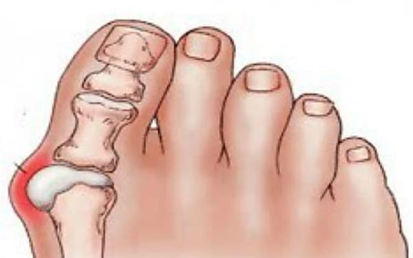 Elimina los juanetes sin dolor y de forma natural.
